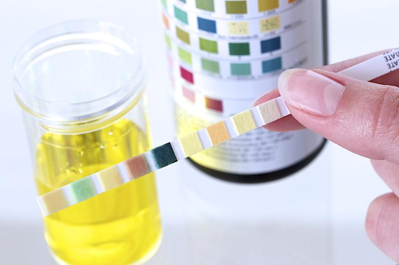 Cách kiểm tra độ pH trong cơ thể bằng xét nghiệm nước tiểu