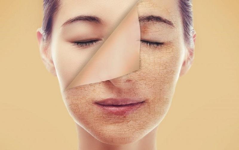 Có nhiều nguyên nhân dẫn đến tình trạng lão hóa sớm