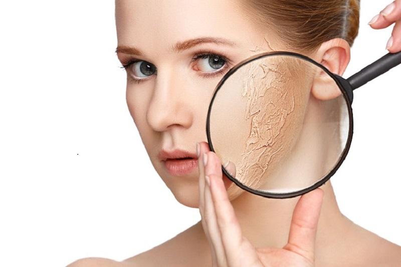 """Da khô là dấu hiệu thường gặp cảnh báo tình trạng da """"xuống cấp"""""""