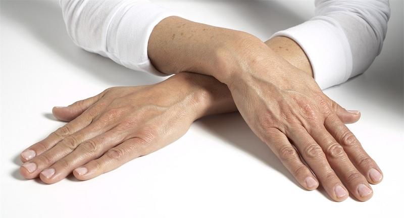 Da tay bị lão hóa thường có biểu hiện thô ráp, khô nhăn và tối màu hơn da thường
