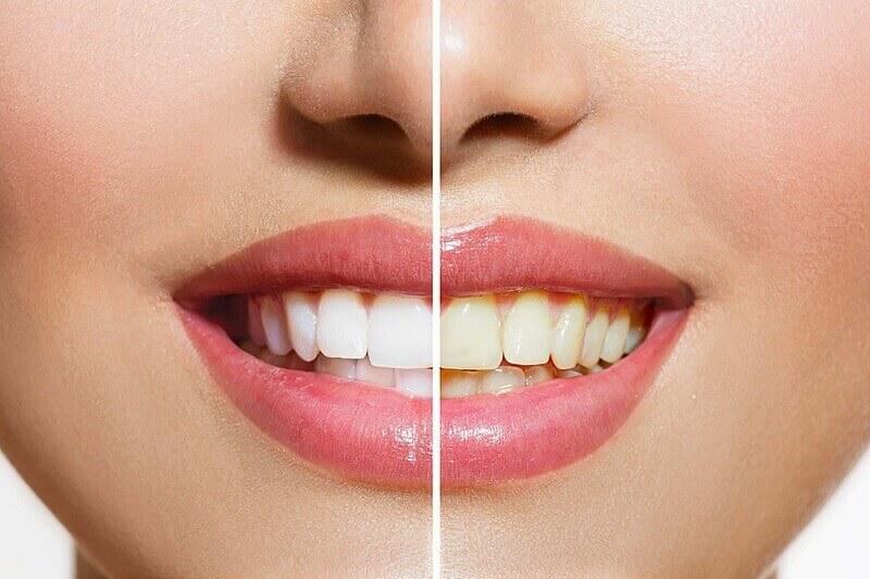 Tác hại lớn với chân răng và nướu nếu sử dụng nước giàu axit thường xuyên