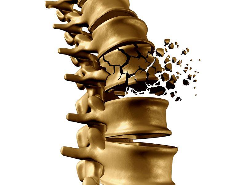 Sử dụng máy lọc nước ion kiềm công nghệ Ro có thể khiến cơ thể bị thiếu Canxi, dẫn đến nguy cơ loãng xương